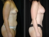 Breast Augmentation Side