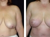Breast Lift Front