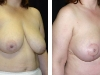 Breast Lift Side