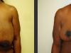breast-reconstruc-diep-7-front