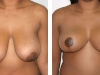 Breast Reduction Front