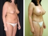Abdominoplasty Side