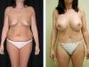 Abdominoplasty Front